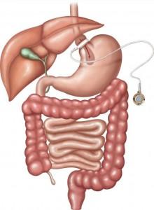 Operationsverfahren: Magenband
