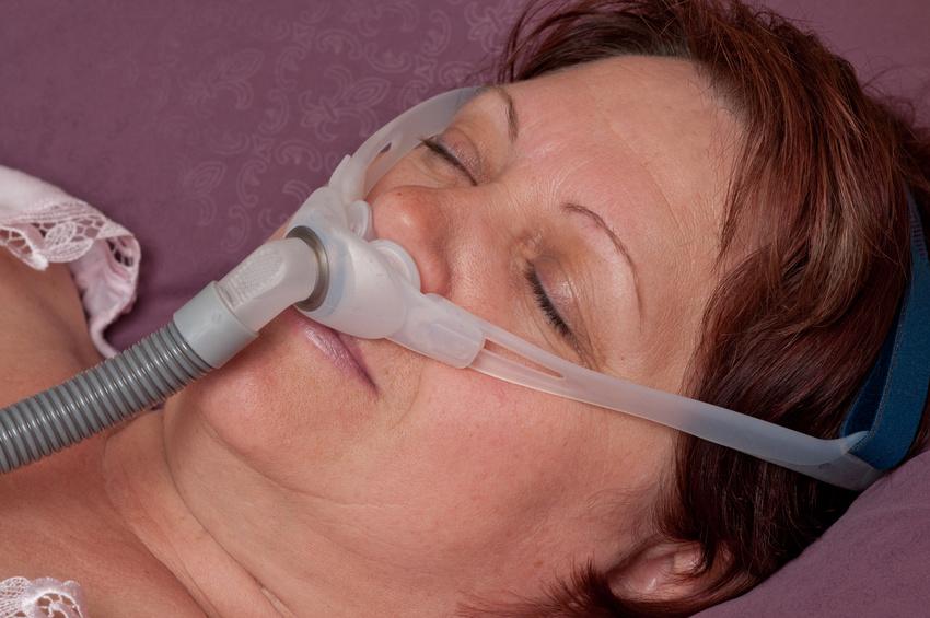 Frau schläft mit Atemmaske wegen Schlafapnoe.